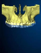 ブロック骨移植 3D画像を構築する唇側の骨欠損が 広範囲に及んでいる