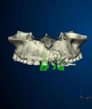 ブロック骨移植 3D画像を構築する