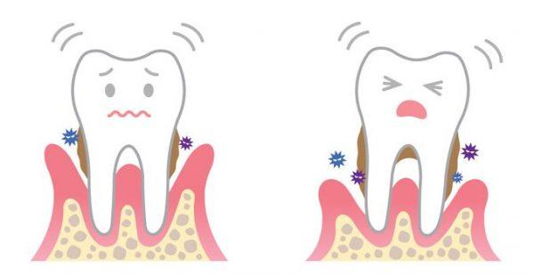 歯周治療<