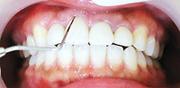 歯周基本検査