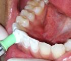 メインテナンス中の口腔内の様子