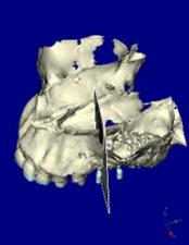 サイナスリフト手術 第ニ小臼歯部