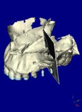 サイナスリフト 第一大臼歯部