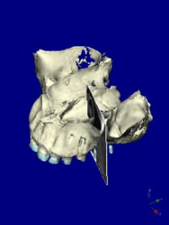 サイナスリフト 第二小臼歯部