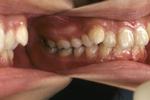 汐留シティセンター歯科 矯正治療 矯正前の状態_2
