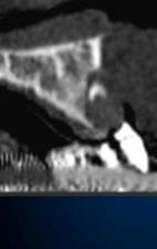 ブロック骨移植 理想的な位置に埋入すると 骨が不足する
