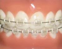 汐留シティセンター歯科 矯正治療 セラミック