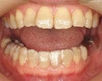 汐留いシティセンター歯科 矯正歯科 クリアリテーナー矯正