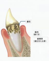 汐留シティセンター歯科 歯周病治療 歯周病の歯茎の状態